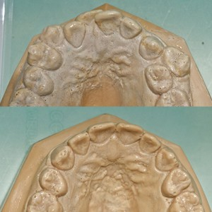 IS IT NECESSARY TO EXTRACT TEETH AS PART OF AN ORTHODONTIC TREATMENT?