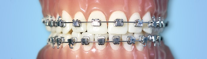 DIFFERENT TYPES OF ORTHODONTIC APPLIANCES